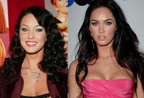Megan Fox Has Undergone Plastic Surgery
